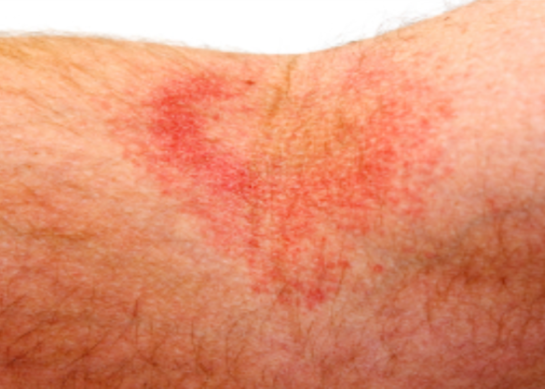 Atopic eczema (atopic dermatitis) is the most common form of eczema, a condition that causes the skin to become itchy, red, dry and cracked.